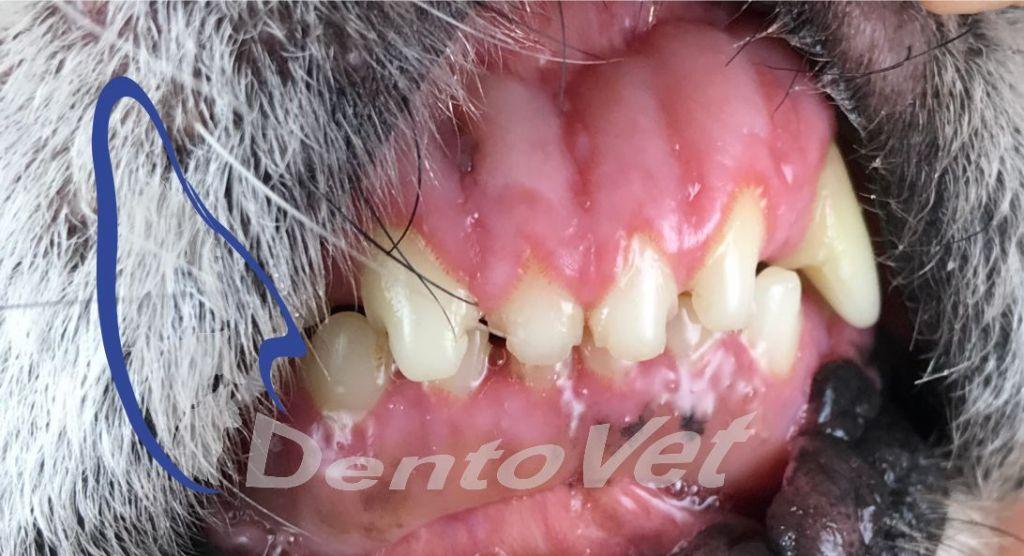 Luna sănătății orale - aspect normal al gingiilor