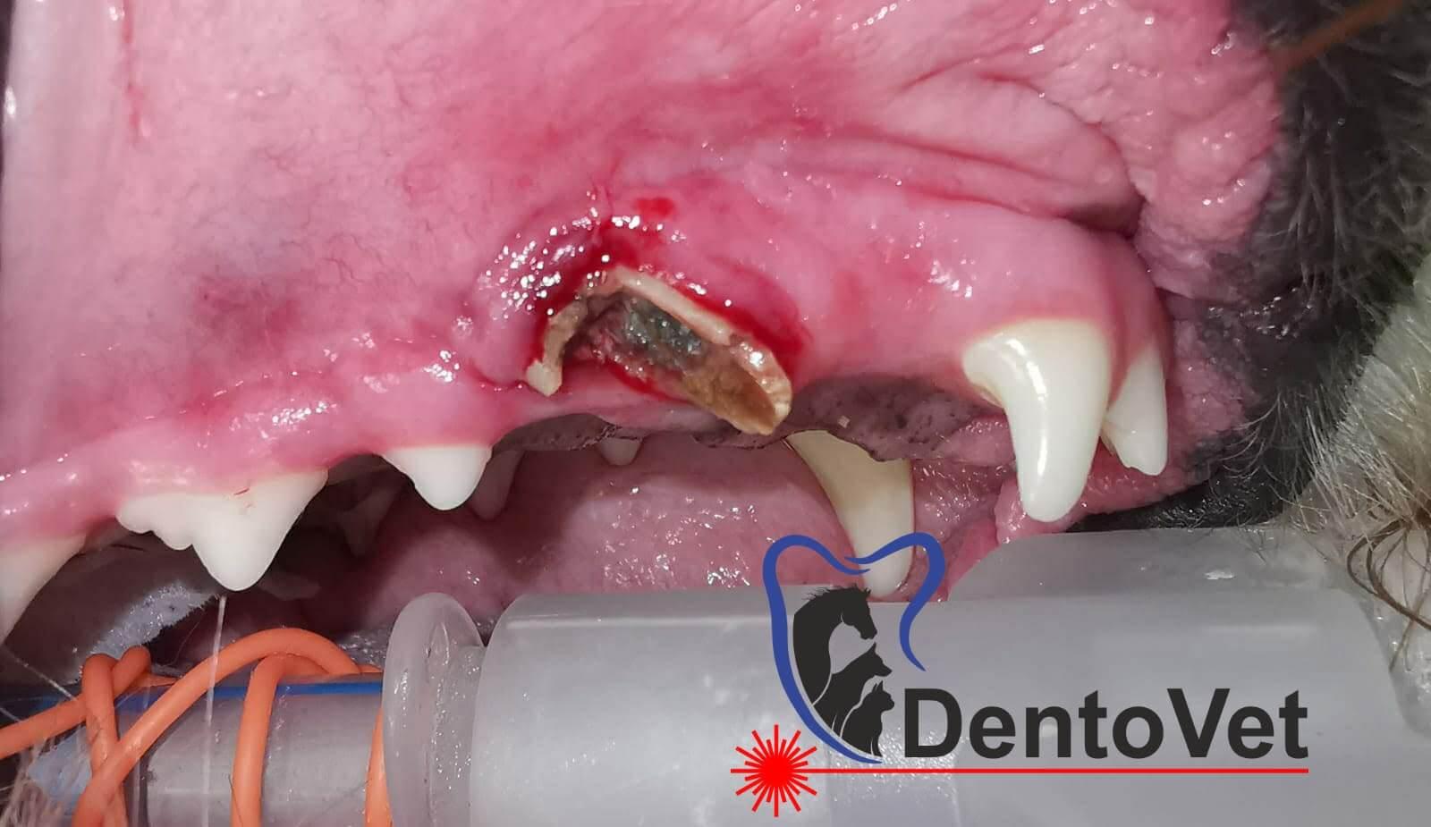 Fractura dentara 1